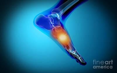 Human Limb Digital Art - Conceptual Image Of Pain In Human Foot by Stocktrek Images