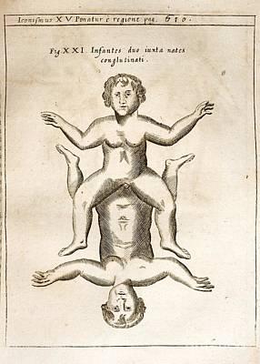Conjoined Infants, Gaspar Schott, 1662 Art Print by Paul D. Stewart