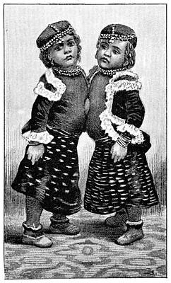 Conjoined Twins, 1893 Art Print by Science Photo Library