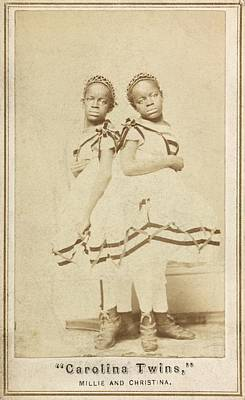 Slaves Photograph - Conjoined Twins by Library Of Congress