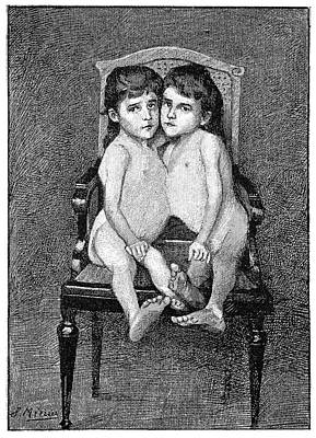 Surviving Photograph - Conjoined Twins by Science Photo Library