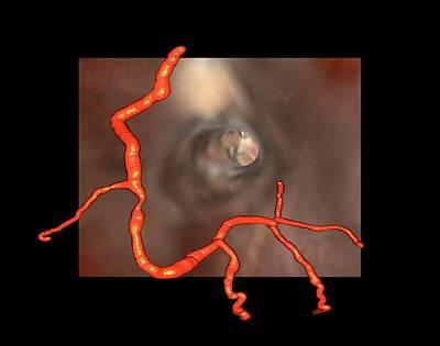 Heart Disease Photograph - Coronary Stenosis by Zephyr