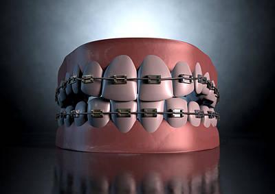 Teenager Digital Art - Creepy Teeth With Braces by Allan Swart