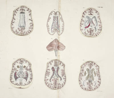 Cross Section Of Brain Art Print by British Library