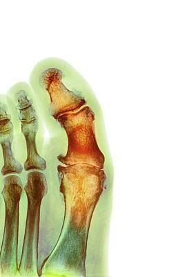 Articulation Photograph - Degenerative Foot Deformation by Dr P. Marazzi