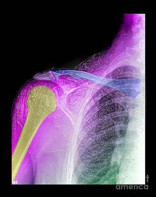 Photograph - Degenerative Shoulder Changes by Living Art Enterprises