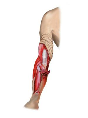 Degloving Arm Injury Art Print by John T. Alesi