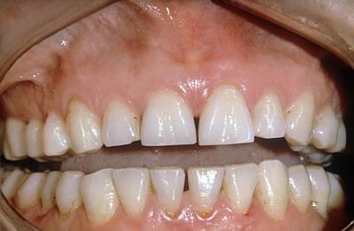 Dental Abrasion Art Print by Dr. J.p. Casteyde/cnri