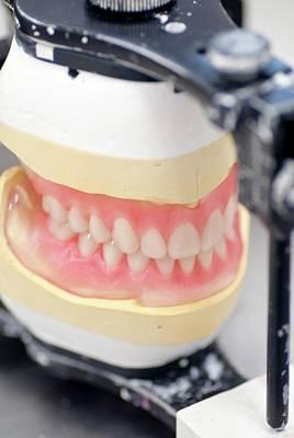 Dentures Photograph - Dentures by Cmft Manchester