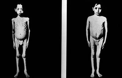 Boy Nude Photograph - Diabetic Boy After Treatment With Insulin by National Library Of Medicine