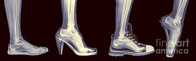 Different Shoes X-ray  Art Print