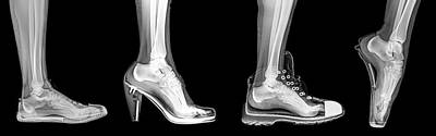 X Ray Photograph - Different Shoes X-ray by Photostock-israel