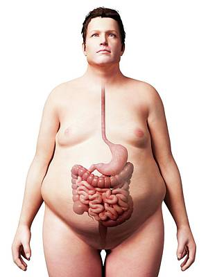 Digestive System Of Obese Man Art Print