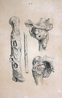 Diseased Bones Art Print