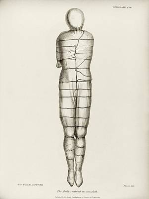 Miscellaneous Photograph - Disinterred 15th-century Body by Middle Temple Library