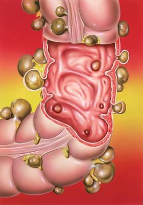 Medical Illustration Photograph - Diverticular Disease by John Bavosi