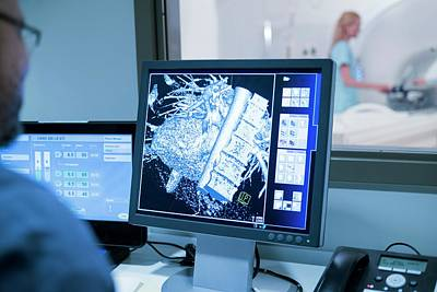 Doctor Looking At Mri Scans On Monitor Art Print by Science Photo Library