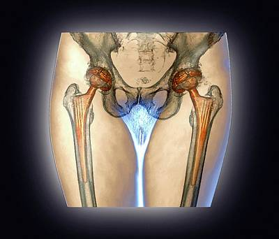 Double Hip Replacement Art Print by Zephyr