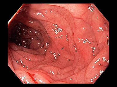 Inflamed Wall Photograph - Duodenum In Coeliac Disease by Gastrolab