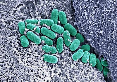 Organism Wall Art - Photograph - Ehec Bacteria On Human Colon Tissue by Stephanie Schuller/steven Lewis/science Photo Library