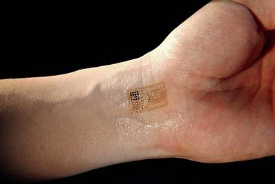 Electronic Circuit Printed Onto Skin Art Print by Professor John Rogers, University Of Illinois