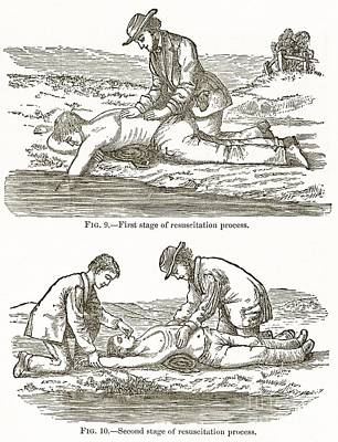 Back To Life Photograph - Emergency Resuscitation, 19th Century by Middle Temple Library