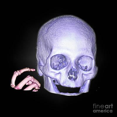 Reconstruction Photograph - Enhanced 3d Ct Reconstruction Of Head by Living Art Enterprises