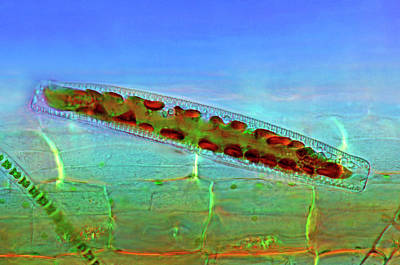 Diatom Photograph - Epithemia Diatom by Marek Mis