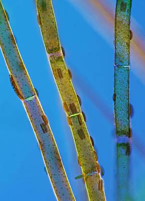 Epithemia Sp On Cladophora, Lm Art Print