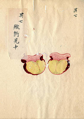 Excised Breast Cancer Art Print