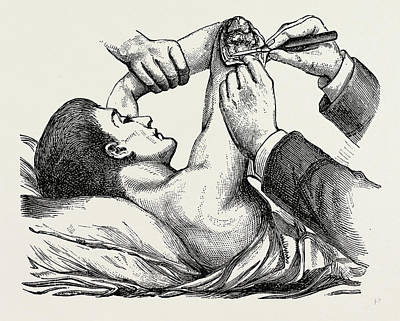 Clearing Drawing - Excision Of The Elbow, The Clearing Of The Humerus by Litz Collection