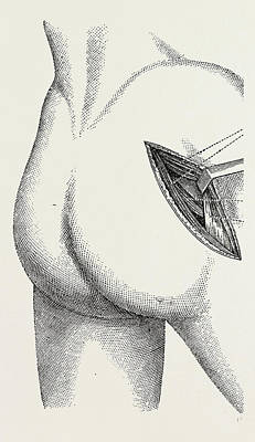 Hip Drawing - Excision Of The Hip By An External Incision by Litz Collection