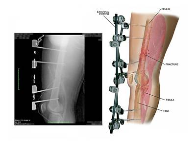 X-rays Of Photograph - External Fixation Of Fractured Femur by John T. Alesi