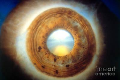 Photograph - Eye by Ralph C Eagle Jr