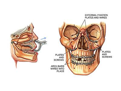 Facial Fractures Reduction And Fixation Art Print