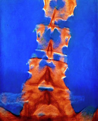 Slipped Disc Wall Art - Photograph - F/col X-ray Of Spine Showing Compressed Vertebrae by Alain Pol, Ism/science Photo Library