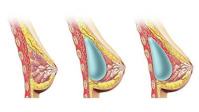 Breast Augmentation Photograph - Female Breast Implant by Leonello Calvetti
