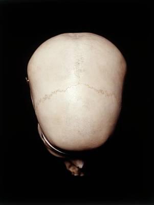 Frontal Bones Photograph - Female Human Skull by Dorling Kindersley/uig