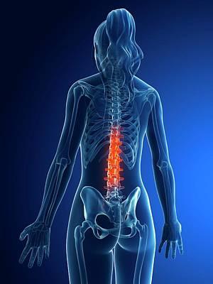 Biomedical Illustration Photograph - Female Lumbar Spine by Sebastian Kaulitzki
