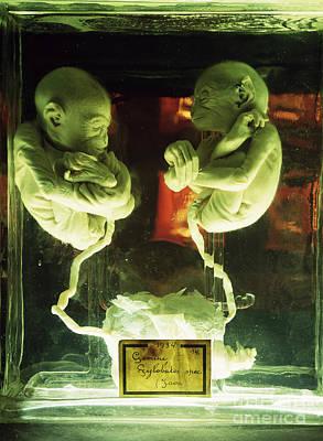 Photograph - Fetal Gibon Twins by Dirk Wiersma