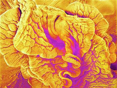 False-colored Photograph - Fimbriae Of A Fallopian Tube by Susumu Nishinaga
