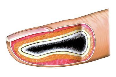 Fingernail Art Print by Asklepios Medical Atlas