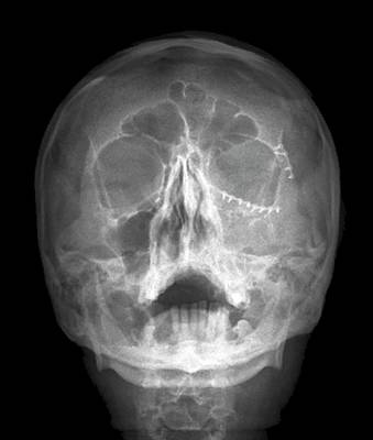 Titanium White Photograph - Fixed Skull Fractures by Zephyr