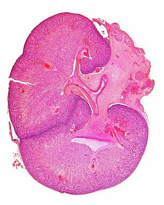 Histology Photograph - Foetal Kidney by Dr Keith Wheeler