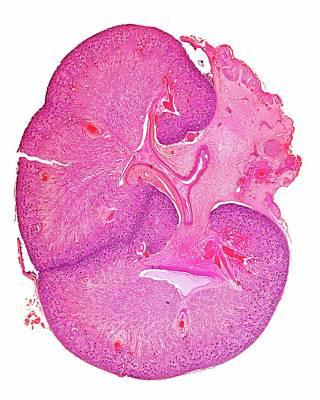 Foetal Kidney Art Print