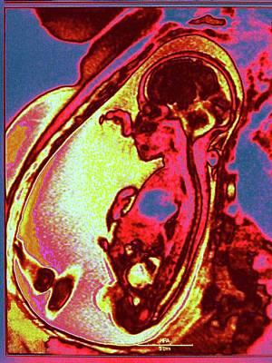 Foetus In Uterus Print by Larry Berman