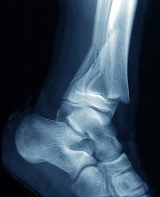 13 Photograph - Fractured Ankle by Zephyr