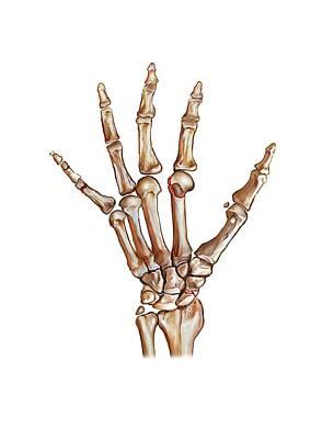 Fractured Wrist And Hand Bones Art Print by John T. Alesi
