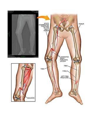 X-rays Of Photograph - Fractures Of Femur And Tibia by John T. Alesi
