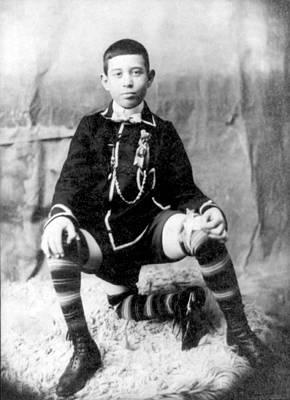 Photograph - Frank Lentini, Three-legged Boy by Science Source